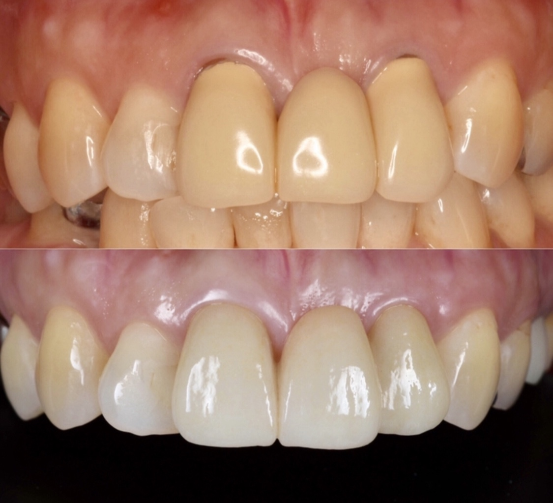前歯のブリッジのやり直し Dr.Kの独り言   KU歯科クリニック
